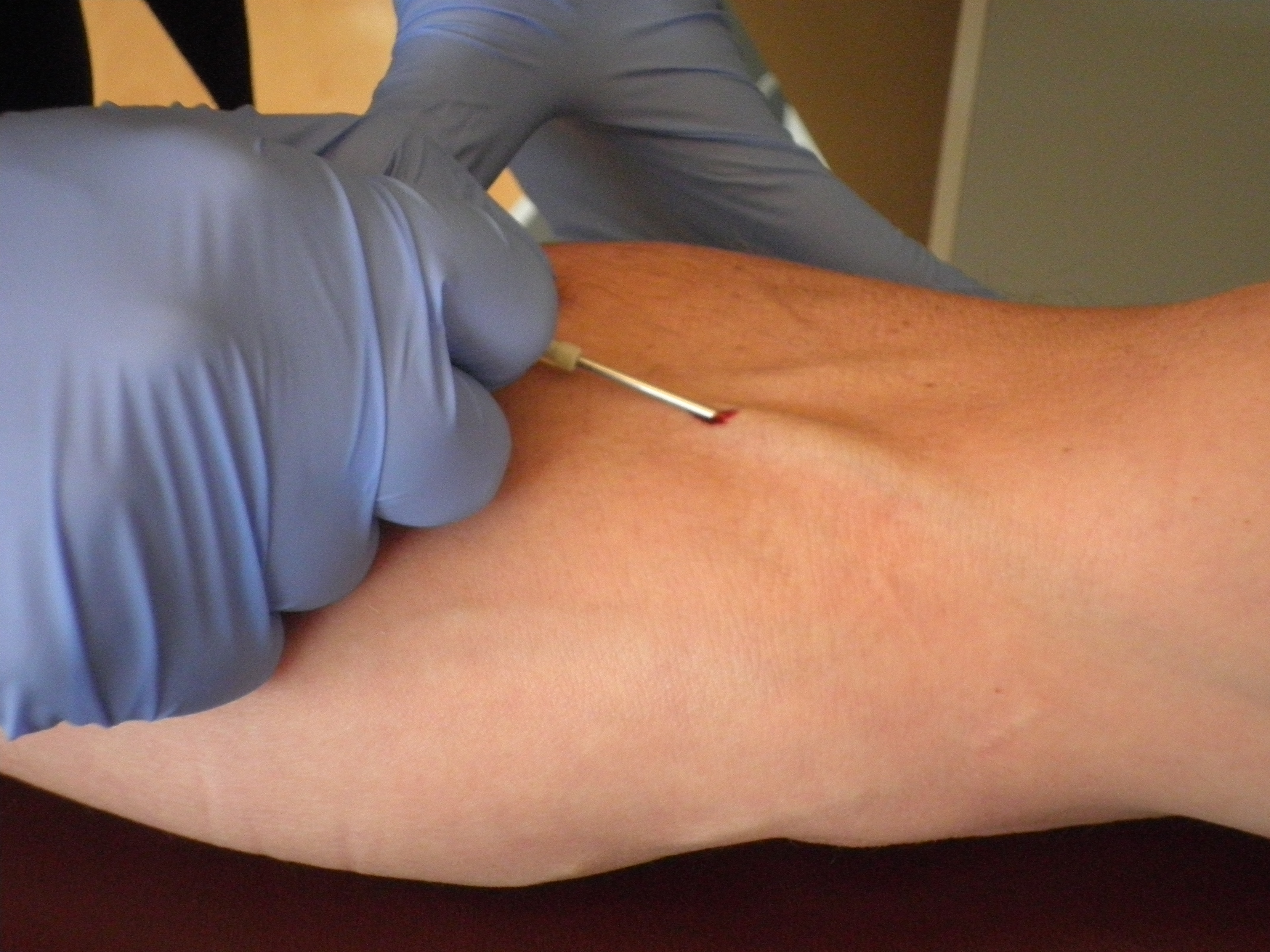 Giving Plasma Needle Pictures To Pin On Pinterest